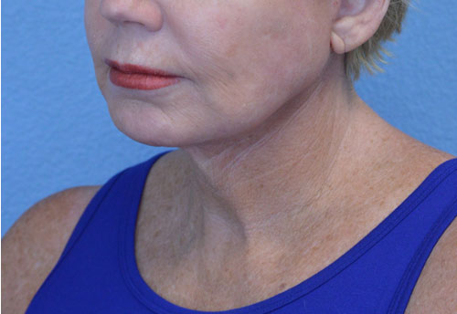 Mini Face and Neck Lift